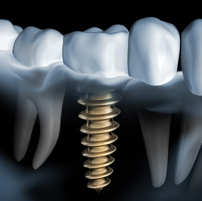Image showing the benefits of dental implants.